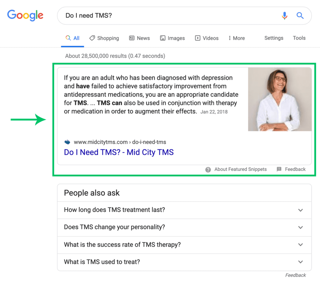 "Google search for ""Do I need TMS?"" which lists a Mid City TMS article first"